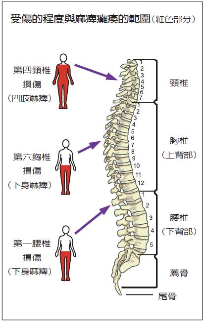 受傷的程度與麻痺癱瘓的範圍