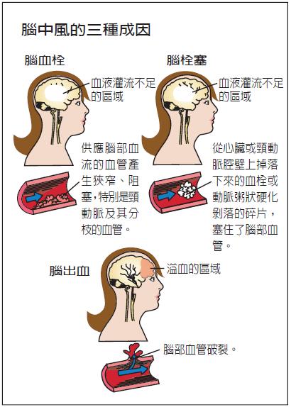 腦中風的三種成因